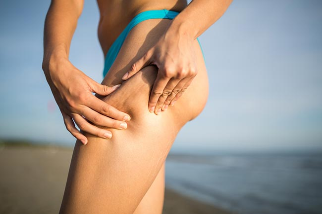 Foods To Avoid For Getting Rid Of Cellulite