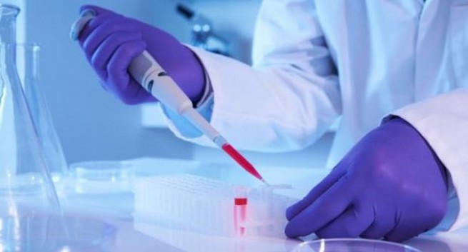 PEOPLE CAN NOW ORDER LOW-COST BLOOD TEST THROUGH ONLINE METHOD